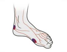 Diabeteksen jalkaongelmat